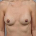Breast Augmentation, Dr. Cassileth, Case 15 After