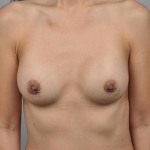 Breast Augmentation, Dr. Cassileth, Case 15 After