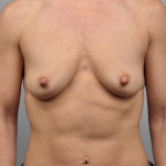Breast Augmenation, Dr. Cassileth, Case 16 Before