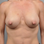 Breast Augmenation, Dr. Cassileth, Case 16 After