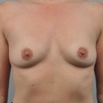 Breast Augmentation, Dr. Cassileth, Case 17 Before