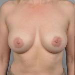 Breast Augmentation, Dr. Cassileth, Case 17 After