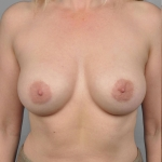 Breast Augmentation, Dr. Cassileth, Case 17 After
