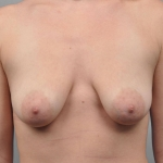 Breast Augmentation, Dr. Cassileth, Case 18 Before