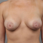 Breast Augmentation, Dr. Cassileth, Case 18 After