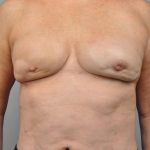 Breast Augmentation, Dr. Cassileth, Case 7 Before