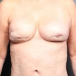 Breast Augmentation, Dr. Cassileth, Case 7 After
