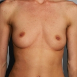 Breast Augmentation, Dr. Cassileth, Case 8 Before