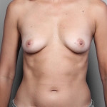 Breast Augmentation, Dr. Killeen, Case 1 Before