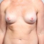 Breast Augmentation, Dr. Killeen, Case 2 After
