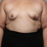 Breast Augmentation, Dr. Killeen, Case 14 Before