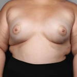 Breast Augmentation, Dr. Killeen, Case 14 After