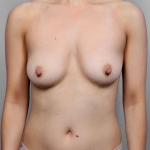 Breast Augmentation, Dr. Killeen, Case 80 Before