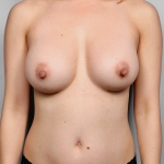 Breast Augmentation, Dr. Killeen, Case 80 After