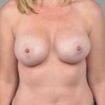 Breast Implant Revision, Dr. Cassileth, Case 11 After