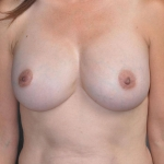 Breast Implant Revision, Dr. Cassileth, Case 16 Before