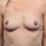 Breast Implant Revision, Dr. Cassileth, Case 16 After