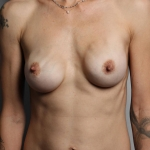 Breast Implant Revision, Dr. Killeen Case 3 Before