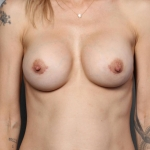 Breast Implant Revision, Dr. Killeen Case 3 After