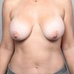 Breast Lift, Dr. Killeen, Case 1 Before