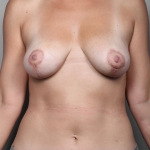 Breast Lift, Dr. Killeen, Case 1 After
