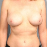 Breast Lift, Dr. Cassileth, Case 3 Before