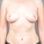 Breast Lift, Dr. Cassileth, Case 3 After