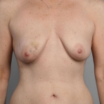 One-Stage Breast Reconstruction, Dr. Cassileth, Case 10 Before