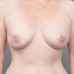 One-Stage Breast Reconstruction, Dr. Cassileth, Case 10 After