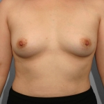 One-Stage Breast Reconstruction, Dr. Cassileth, Case 12 Before