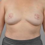 One-Stage Breast Reconstruction, Dr. Cassileth, Case 12 After