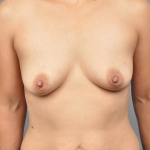 One-Stage Breast Reconstruction, Dr. Cassileth, Case 17 Before