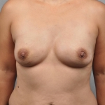 One-Stage Breast Reconstruction, Dr. Cassileth, Case 17 After