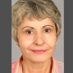 Facelift, Dr. Cassileth, Case 1 After