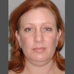Facelift, Dr. Cassileth, Case 3 Before