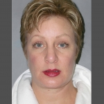 Facelift, Dr. Cassileth, Case 3 After
