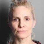 Facelift, Dr. Cassileth, Case 4 Before
