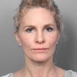 Facelift, Dr. Cassileth, Case 4 After
