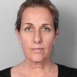 Facelift, Dr. Cassileth, Case 5 Before