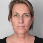 Facelift, Dr. Cassileth, Case 5 After