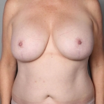 Breast Fat Transfer, Dr. Cassileth, Case 12 Before