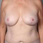 Breast Fat Transfer, Dr. Cassileth, Case 12 After
