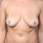 Breast Fat Transfer, Dr. Cassileth, Case 6 Before