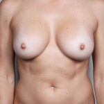 Breast Fat Transfer, Dr. Cassileth, Case 6 After