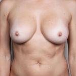 Breast Fat Transfer, Dr. Cassileth, Case 6 After