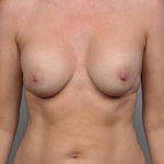 Breast Fat Transfer, Dr. Cassileth, Case 17 Before