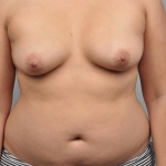 Breast Fat Transfer, Dr. Cassileth, Case 11 Before