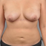 Breast Fat Transfer, Dr. Cassileth, Case 11 After