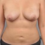 Breast Fat Transfer, Dr. Cassileth, Case 11 After