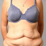 Tummy Tuck, Dr. Cassileth, Case 7 Before